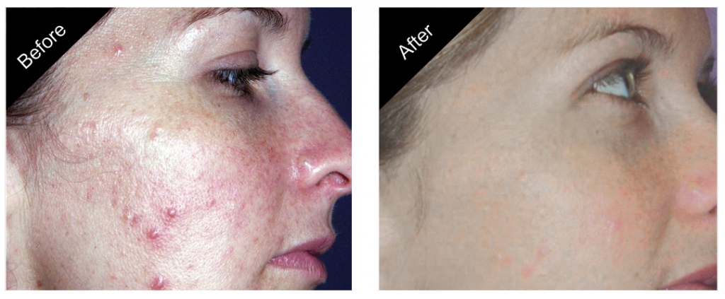 gallery_acne_removal_treatment_01-close