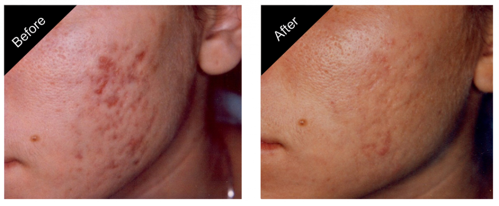 gallery_acne_removal_treatment_02-close