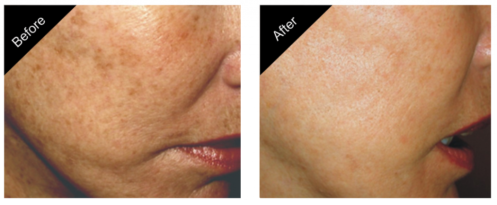 gallery_skin_rejuvenation_treatment_06-close